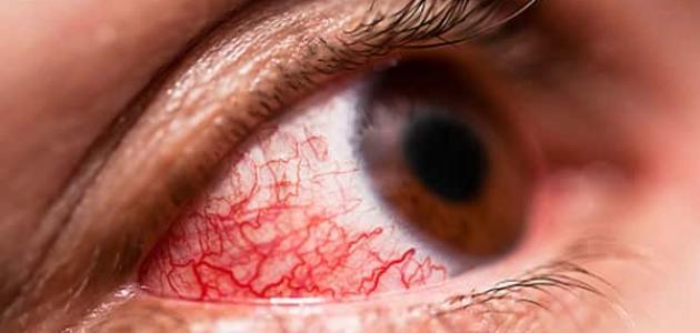أسباب التهاب ملتحمة العين