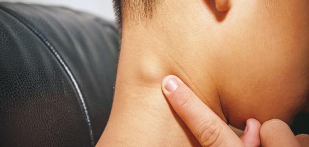 سرطان الغدد الليمفاوية