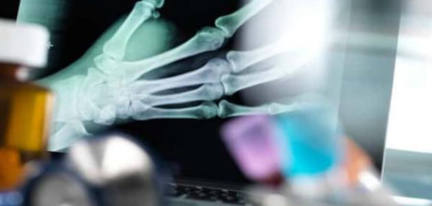 معلومات عن كسور العظام
