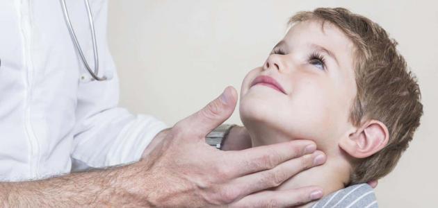 أعراض الغدة النكافية عند الأطفال
