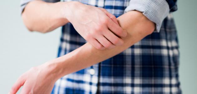 أنواع التقرحات الجلدية