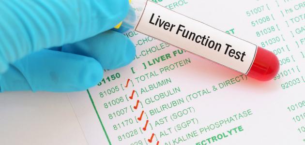 ما هو فحص وظائف الكبد