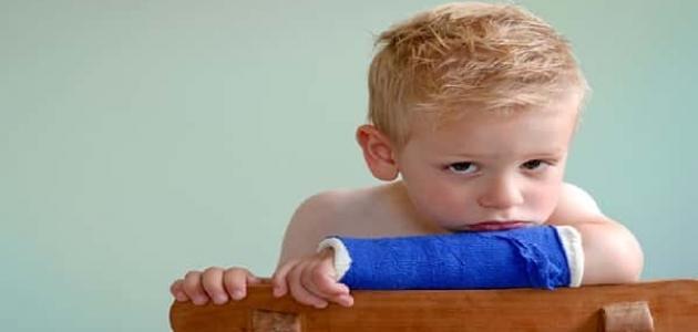 هشاشة العظام عند الأطفال