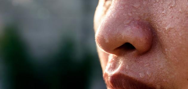 علاج التعرق الزائد في الوجه