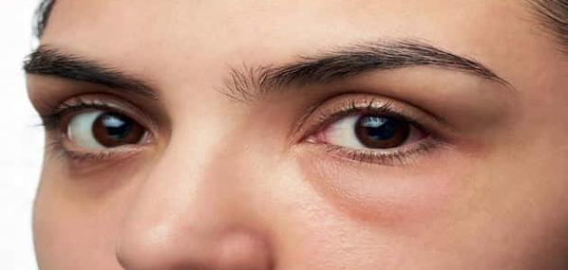 علاج تورم العين