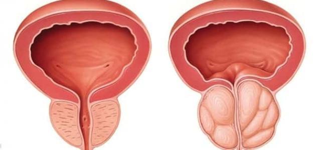 علاج التهاب البروستات بالثوم