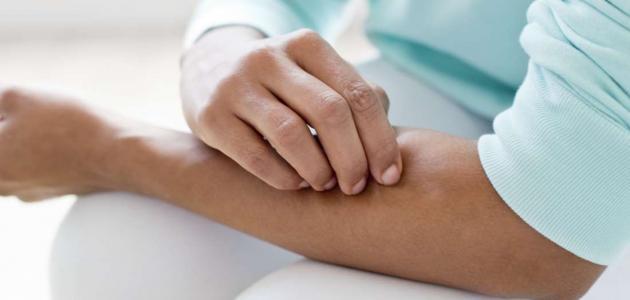 كيفية علاج مرض المليساء