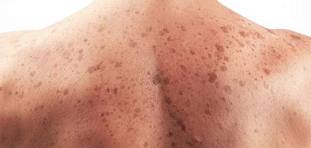 أنواع سرطان الجلد