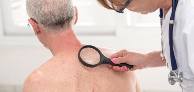طريقة علاج سرطان الجلد