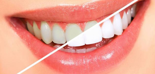 معلومات عن تبييض الأسنان في المنزل