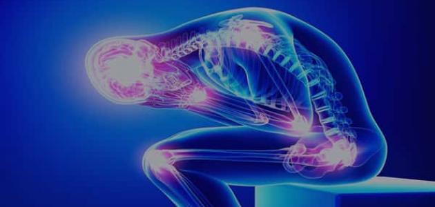 معلومات عن تليف العضلات