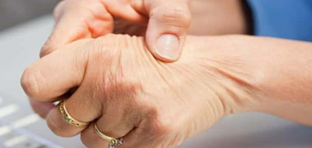 طرق علاج الحمى الروماتيزمية