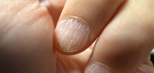 علاج التهاب الأظافر بالأعشاب