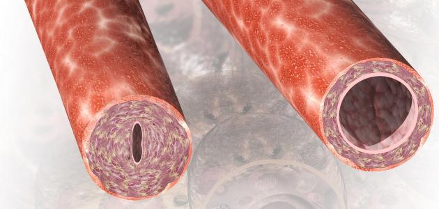 أعراض التهاب الأوعية الدموية
