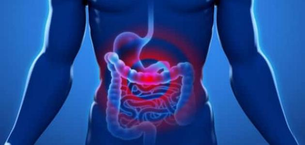 معلومات عن التهاب الصفاق
