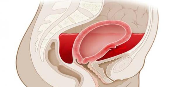 طرق علاج النزيف الرحمي - سطور