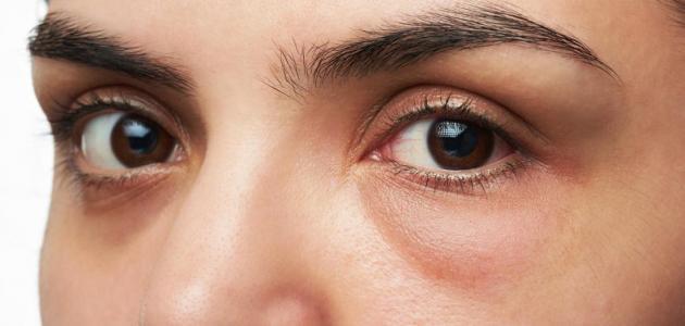 طرق علاج انتفاخ تحت العين