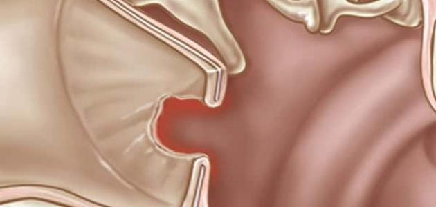 أعراض ثقب طبلة الأذن