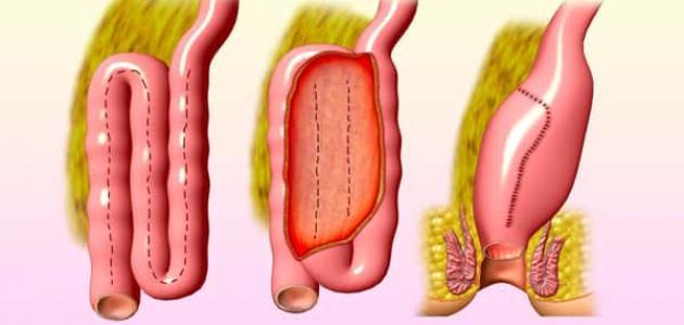 علاج التهاب القولون التقرحي بالأعشاب