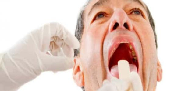 طرق علاج خراج الأسنان
