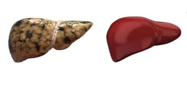 طرق علاج الدهون على الكبد