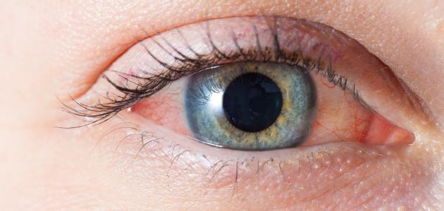 أسباب احمرار بياض العين