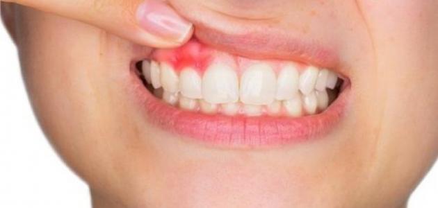 معلومات عن خراج الأسنان