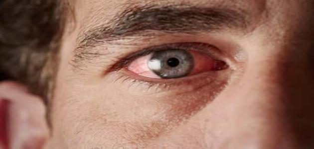 معلومات عن مرض التراخوما