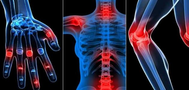 أعراض الروماتيزم في العظام