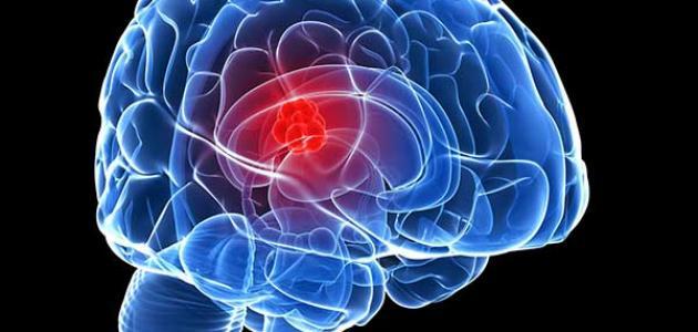 معلومات عن سرطان المخ