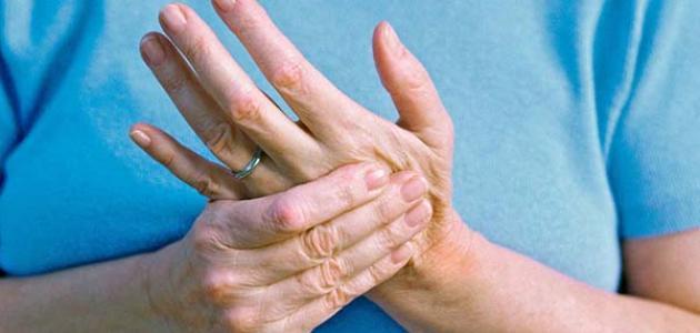 معلومات عن التهاب المفاصل الصدفي