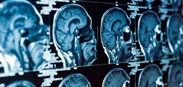 معلومات عن نقص الأكسجين في الدماغ