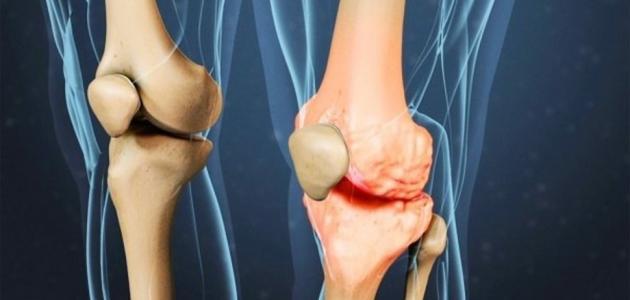 معلومات عن التهاب مفصل الركبة