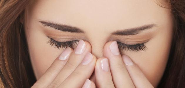 معلومات عن صداع العين