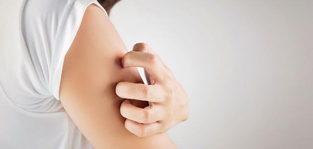 أسباب الطفح الجلدي المفاجئ عند الكبار