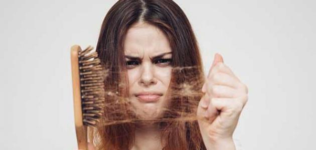 علاج تساقط الشعر بالثوم والبصل