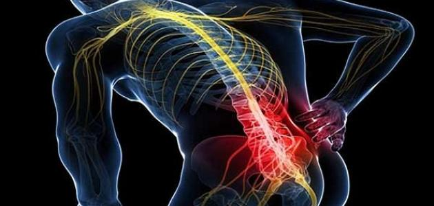معلومات عن التهاب العصب الوركي