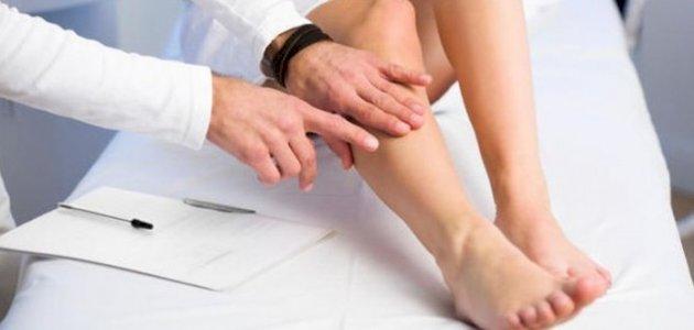 طرق-علاج-تورم-القدمين/