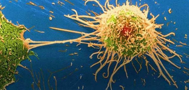 أنواع السرطان الخبيث