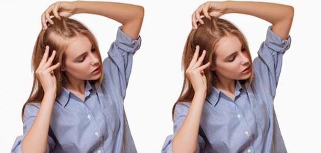 زراعة الشعر في تركيا تجذب الكثير من النساء!