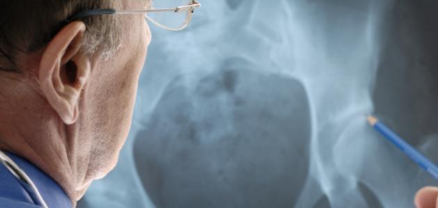 أعراض سرطان العظام الخبيث