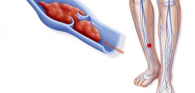 طرق علاج جلطة الساق