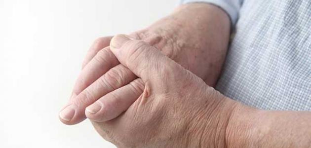 أعراض زيادة النحاس في الجسم