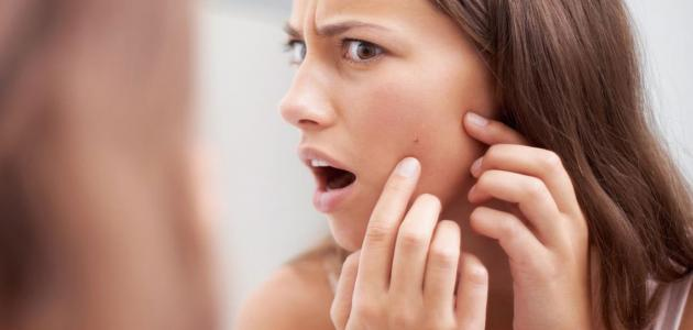 كيفية علاج بثور الوجه