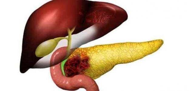 أسباب سرطان البنكرياس