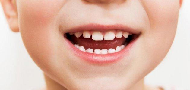 هل يوجد علاج لفطريات الفم بالأعشاب؟ وما رأي العلم؟
