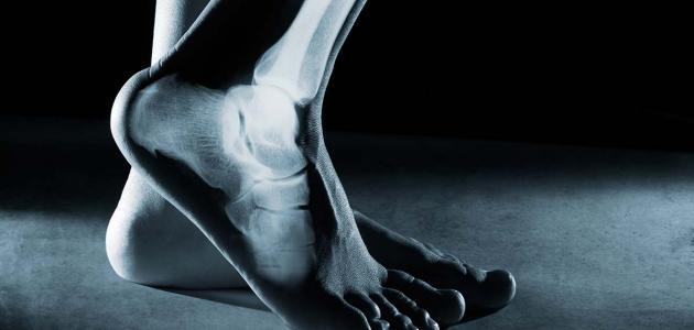 ما هو تكلس العظام