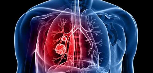 علاج سرطان الرئة بالأعشاب
