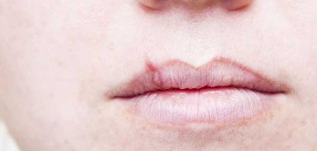 علاج سرطان الفم بالأعشاب
