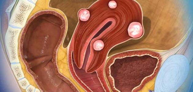 تعريف الأورام الليفية